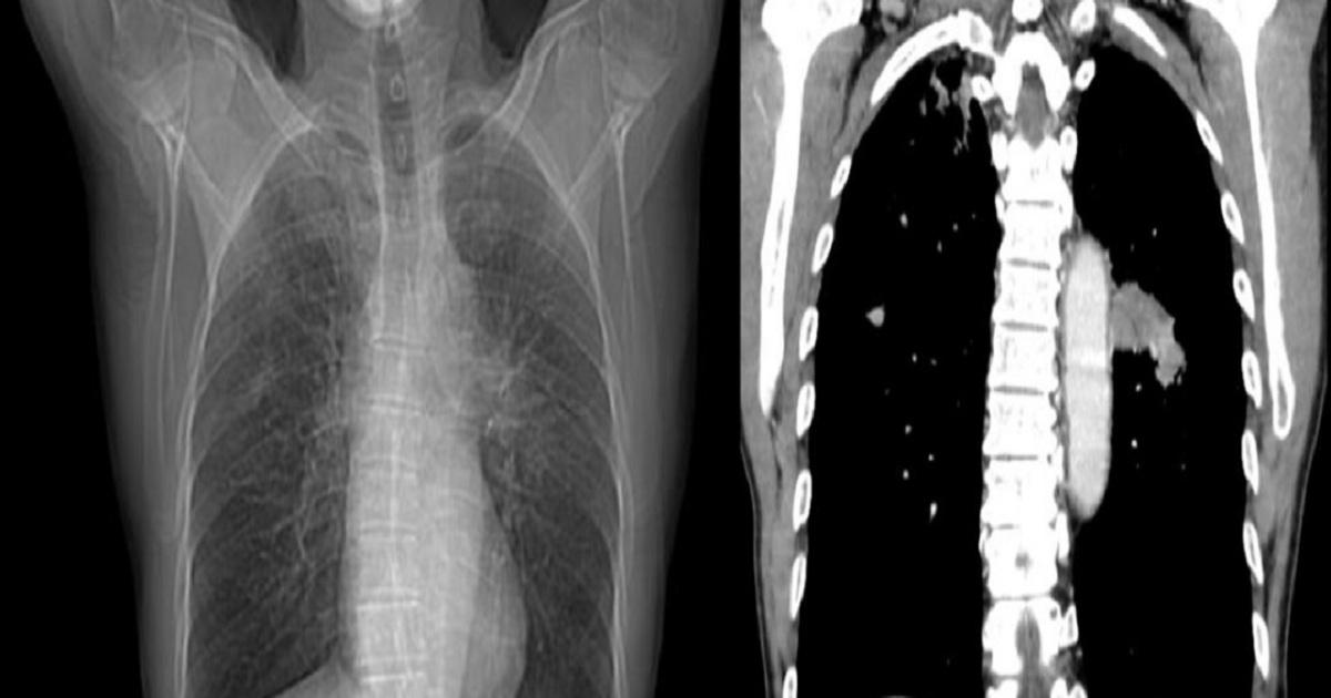 Fake Malware Tricks Radiologists Diagnosing Cancer